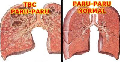 Gambar Paket obat infeksi paru paru