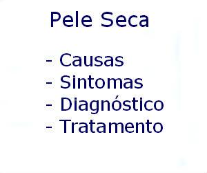 Pele seca causas sintomas diagnóstico tratamento prevenção