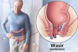 """""""wasir"""""""