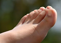 Micoza-unghiilor-tratament-cauze-si-simptome