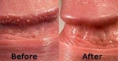 Ce trebuie făcut dacă apare acneea pe penis - Pui varicel