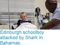 https://sciencythoughts.blogspot.com/2018/04/edinburgh-schoolboy-attacked-by-shark.html