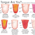 Here Is What Your Tongue Telling You About Your Health