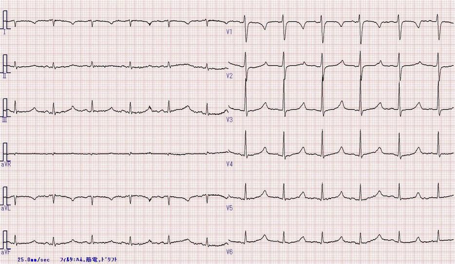 松下 ER ランチ・カンファレンス: QT延長症候群(Long QT syndrome, LQTS)