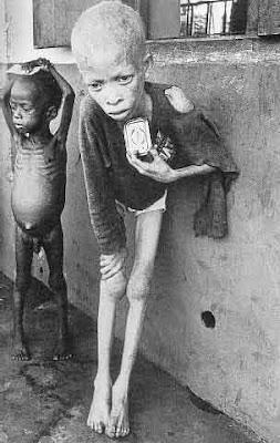 Many Biafran children died of Kwashiorkor