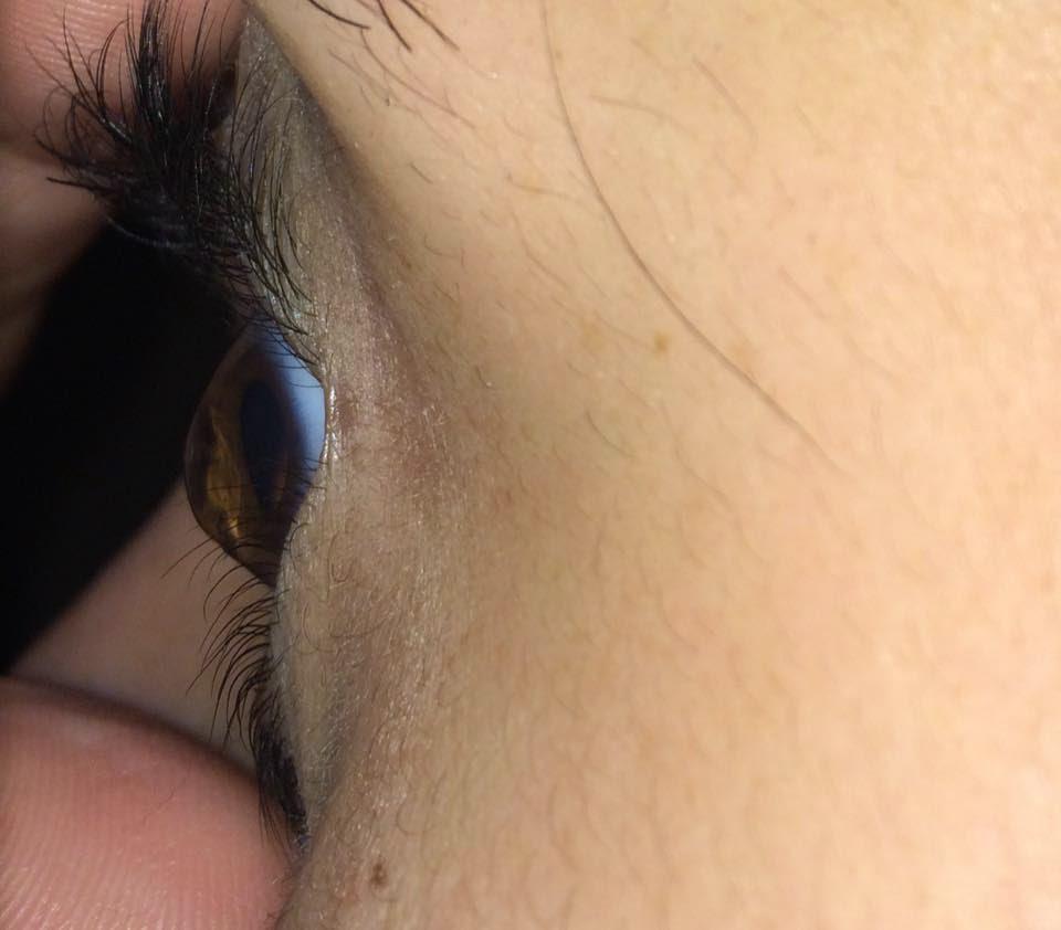 Left eye without corneal transplant