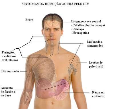 #Aids (HIV), História, Prevenção e Tratamento Contra a Aids