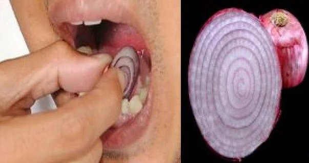 Place A Slice Of Onion On Your Tooth For 15 Minutes