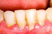 4 Cara Untuk Menghapus Plakat Gigi Di Rumah Secara Alami