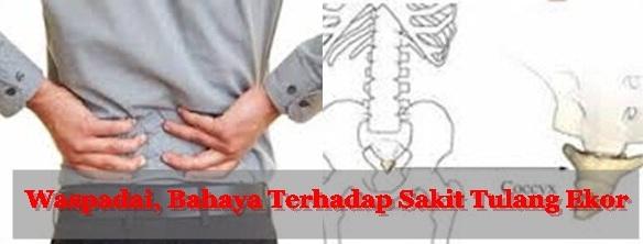 Obat Penyakit Tradisional Nyeri Tulang Ekor
