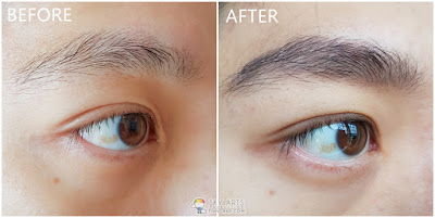 Immediate result after my first Korean Eyebrow Embroidery with Ivy Brow Design (right eye)