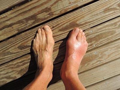 Nyeri kaki