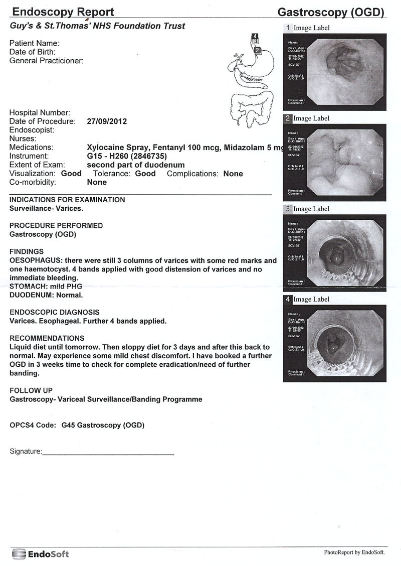 Endoscopy Report