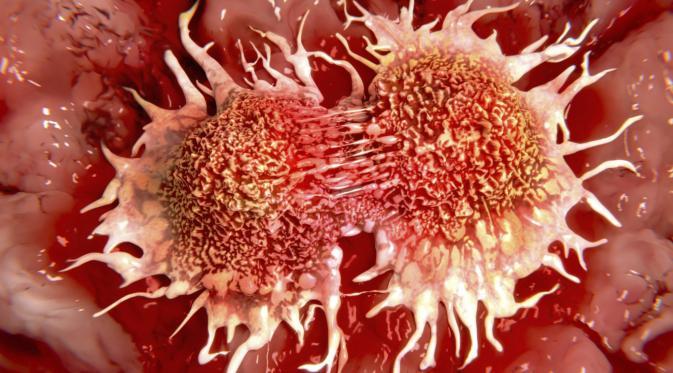 Ini Alasan Mengapa Kanker Sulit Untuk Disembuhkan