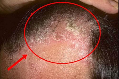 tips ampuh menghilangkan ketombe berkerak di kepala