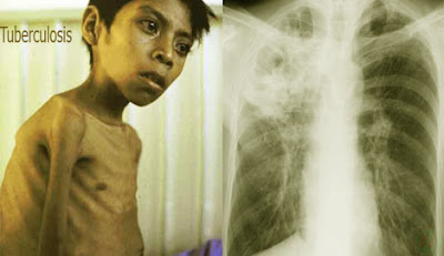 tuberculosis, যক্ষ্মারোগ