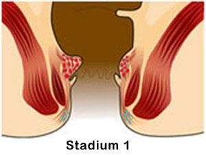 Cara Menghilangkan Atau Mengempiskan Benjolan di Anus gambar penyakit wasir ambeien stadium 1 fase awal