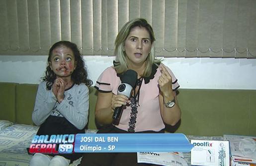 Avó de menina com doença de pele em Olímpia pede ajuda no Balanço Geral