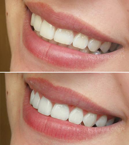wybielanie zębów węglem aktywnym efekty