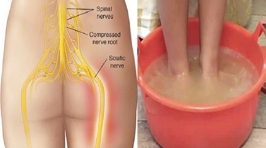 Image result for sciatic nerve pain treatment