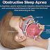 Sleep Apnea Dental Appliance Cost Explanation