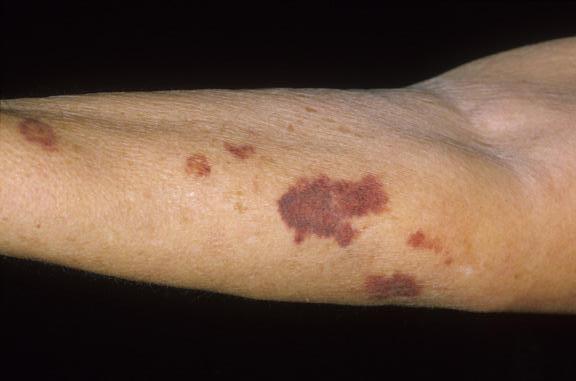 Hematomas espontaneos en las piernas
