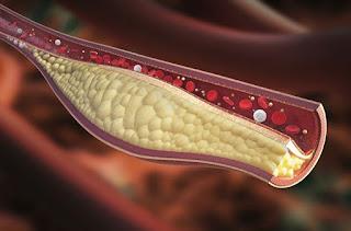 9 habitudes qui abaissent le cholestérol sans les statines dangereuses