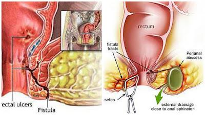 Cara Menyembuhkan Fistula Ani Tanpa Operasi