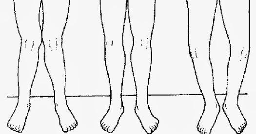 Dr. Sean Delanghe: Improve runners' knee by decreasing