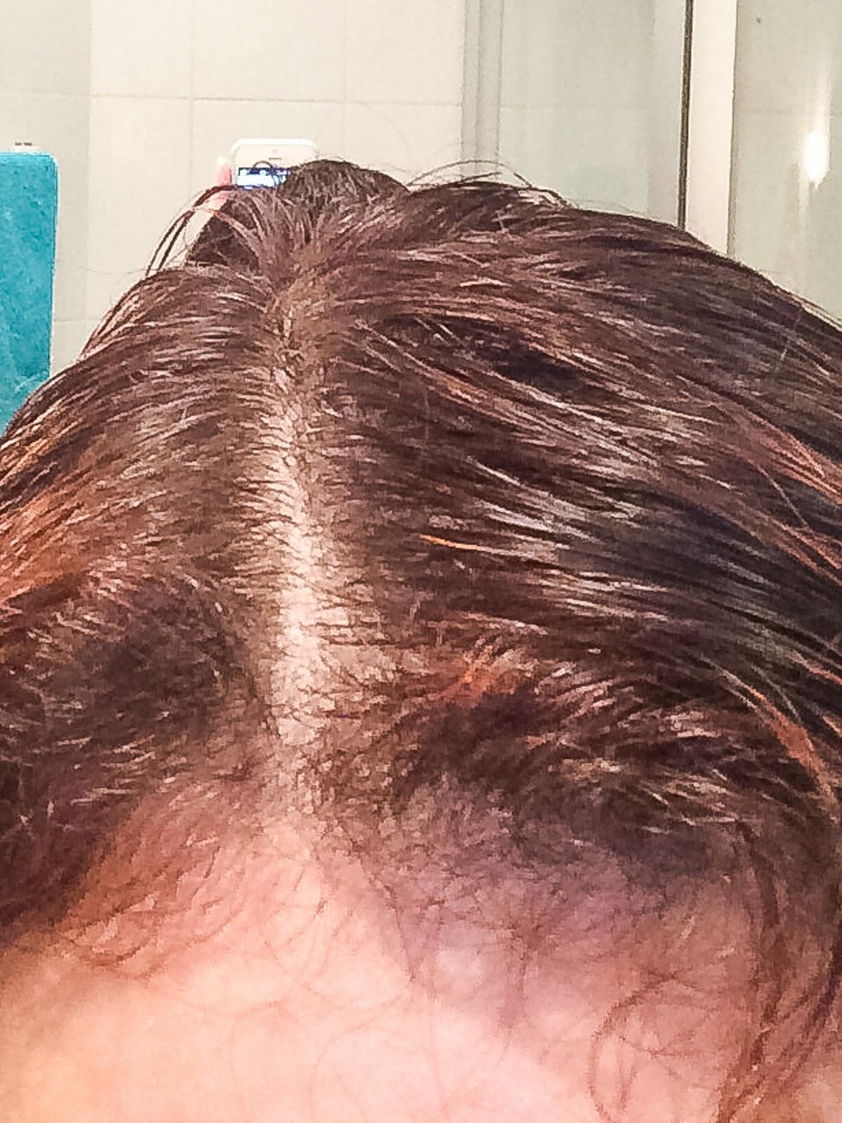 wypadanie włosów po kreatynie