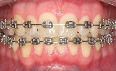 Konsultasi Kesehatan Gigi Dan Mulut Estetik Perawatan Ortodonti