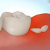 How to get rid of swollen gums by home treatment