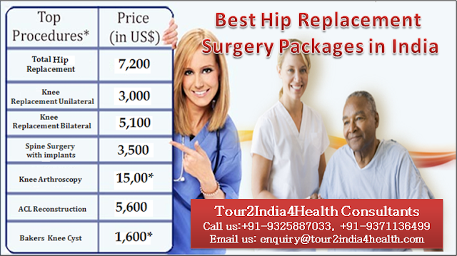 Best Hip Replacement Surgery Packages in India