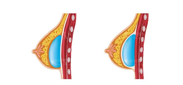 乳線下以及胸大肌筋膜下示意圖