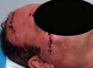 Πάτρα: Στο Πειθαρχικό δύο γιατροί για το χειρουργείο που δεν έγινε… και το «χαράκωμα»