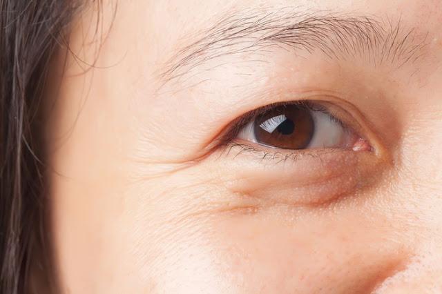 Nếp nhăn vùng mắt khiến bạn trông già hơn và kém thẩm mỹ.