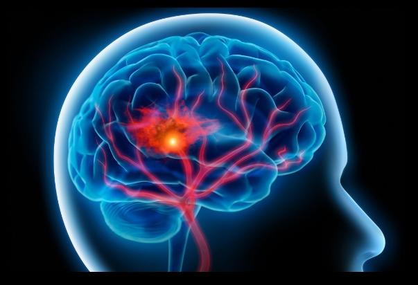 Preventia impotriva accidentului vascular cerebral