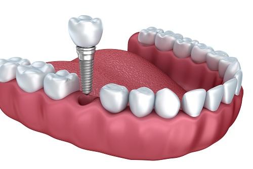 Kết quả hình ảnh cho Sự dính chặt mảnh ghép được cải thiện răng implant