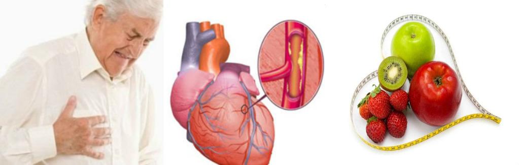 14 Jenis Makanan Sehat Yang Dapat Mengurangi Plak Di Arteri