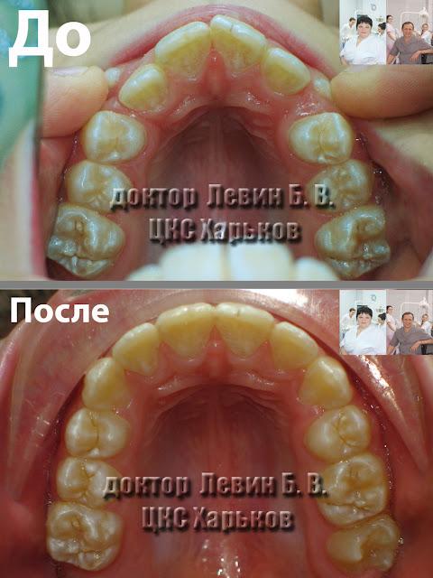 Фото зубного ряда до и после лечения брекетами