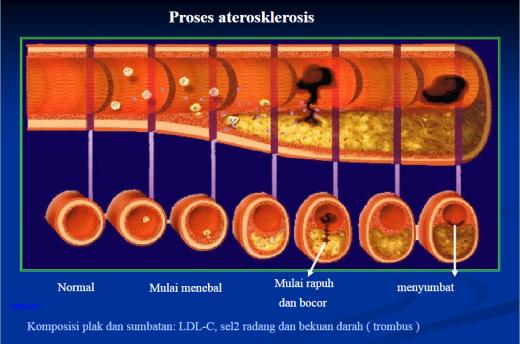 Asuhan Keperawatan Pasien Aterosklerosis