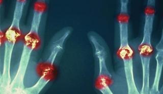 Ρευματοειδής αρθρίτιδα: Πώς εκδηλώνεται, τι θεραπείες έχει και πώς να την προλάβετε