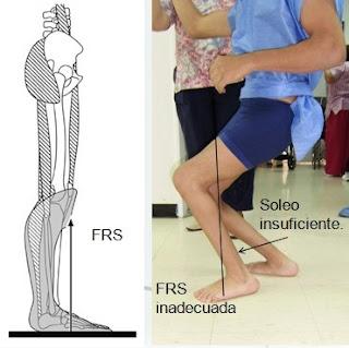 Parálisis cerebral - Cirugía de alargamiento de Isquiotibiales (Cuando se Recomienda)