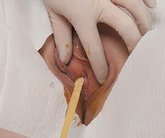 Indwelling Urinary Catheterization ~ Nursing