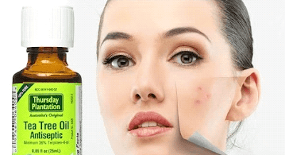 Tea Tree Oil with Witch Hazel for Pimples