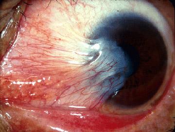 आंखों में आ रही लाली को नजरअंदाज न करें - Do not ignore the blubber coming in the eye -