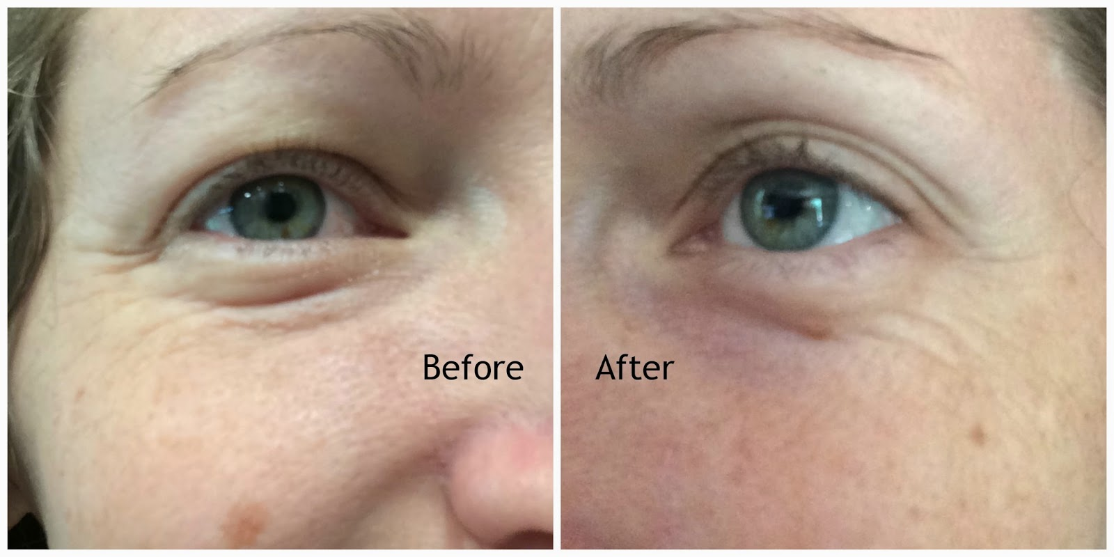Body Merry Age Defense Eye Cream Before and After review #ivysvariety