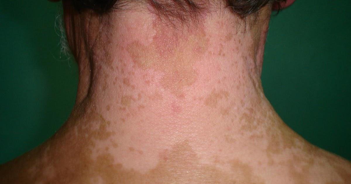 Como se cura el vitiligo que es lo que lo causa y remedios para tratarlo vitiligo - Manchas blancas en la pared ...