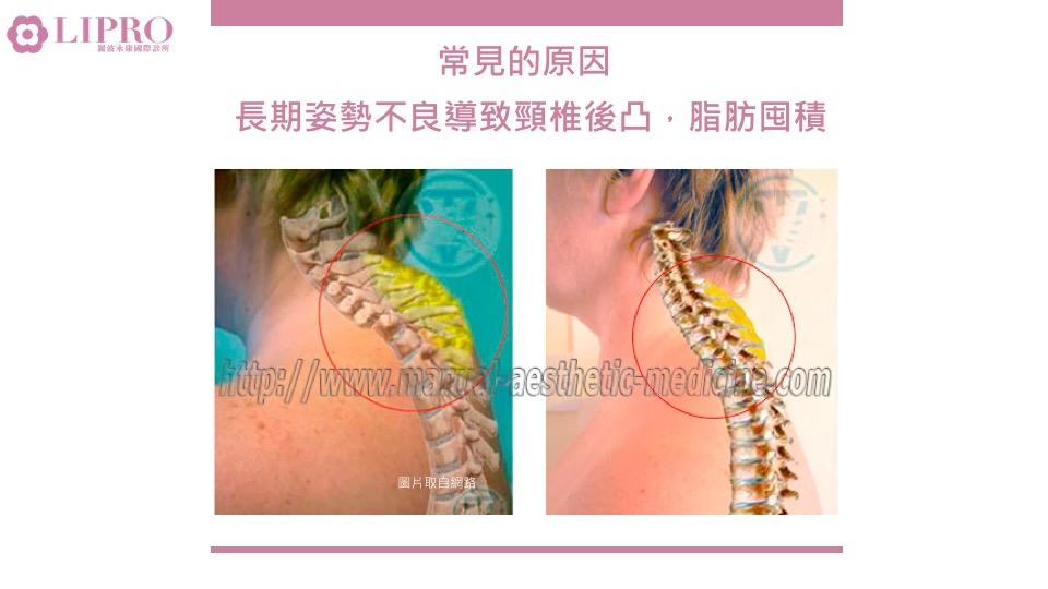 頸部抽脂|特殊部位抽脂|顯微套管抽脂
