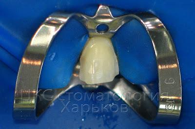 зуб изолирован кофердамом перед фиксацией винира